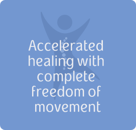 Accelerated healing with complete freedom of movement