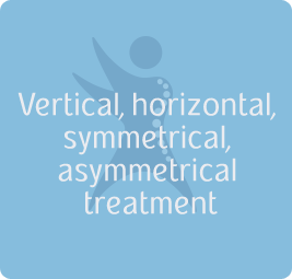 Vertical, horizontal, symmetrical, asymmetrical treatment
